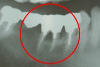 抜歯窩の掻爬後再植