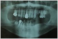 多数歯欠損